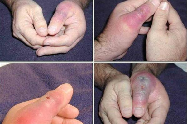 brown recluse injury